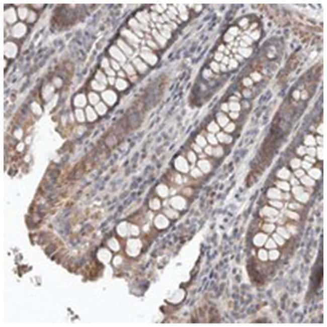 UNK Rabbit anti-Human, Polyclonal Antibody, Abnova 100µL; Unlabeled:Life