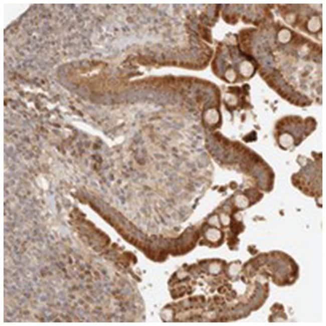 CLEC4C, Rabbit, Polyclonal Antibody, Abnova 100µL; Unlabeled:Life