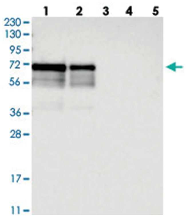 LTV1 Rabbit anti-Human, Polyclonal Antibody, Abnova 100µL; Unlabeled:Life