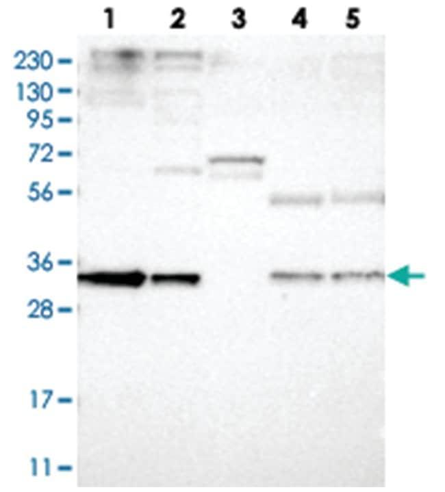 PPCS, Rabbit, Polyclonal Antibody, Abnova 100µL; Unlabeled:Life Sciences