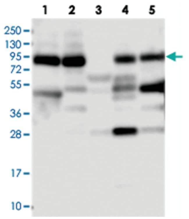 VPS51 Rabbit anti-Human, Polyclonal Antibody, Abnova 100µL; Unlabeled:Life