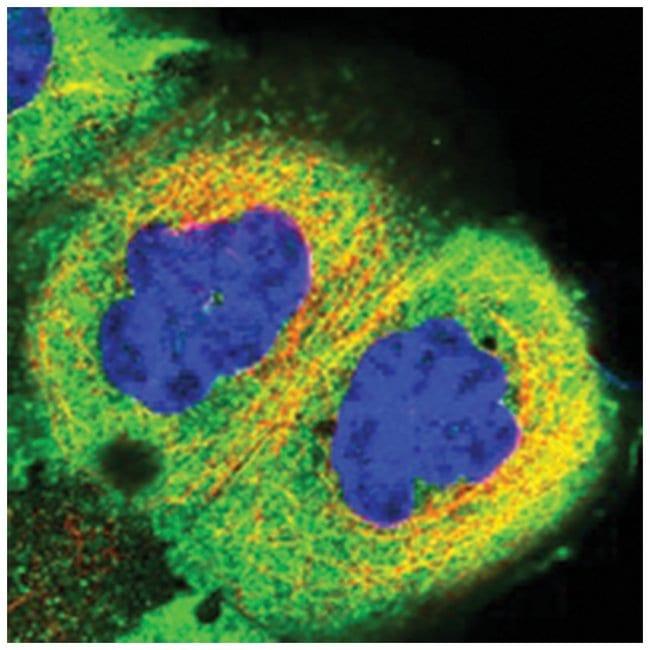 RCCD1 Rabbit anti-Human, Polyclonal Antibody, Abnova 100µL; Unlabeled:Life