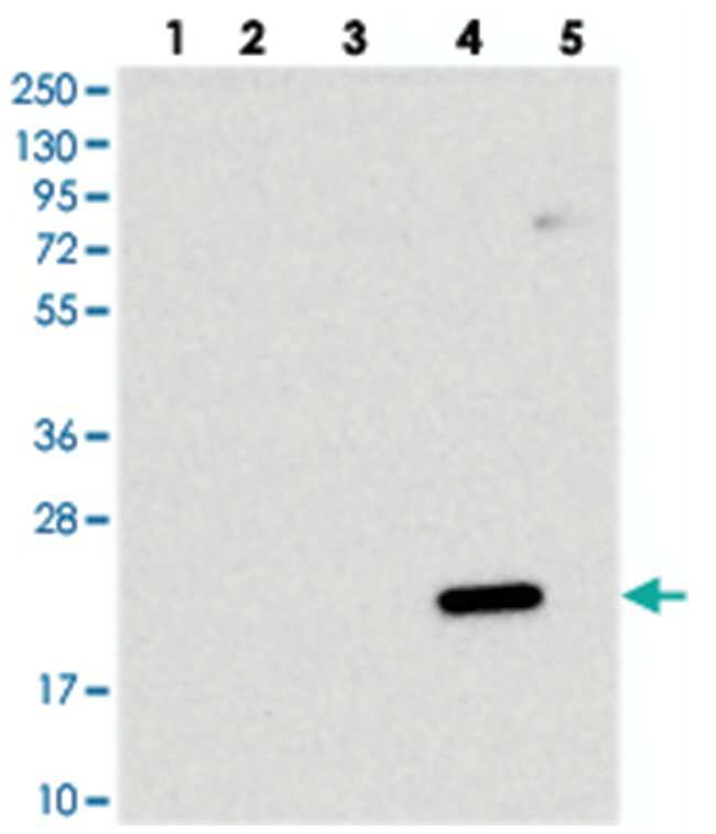 DCTN5, Rabbit, Polyclonal Antibody, Abnova 100µL; Unlabeled:Life Sciences