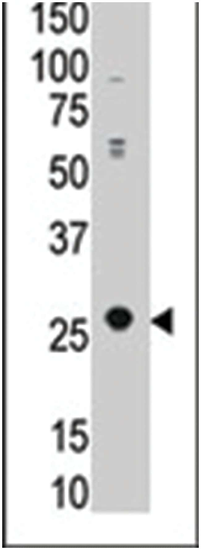 APOBEC3A, Rabbit, Polyclonal Antibody, Abnova 400µL; Unlabeled:Life