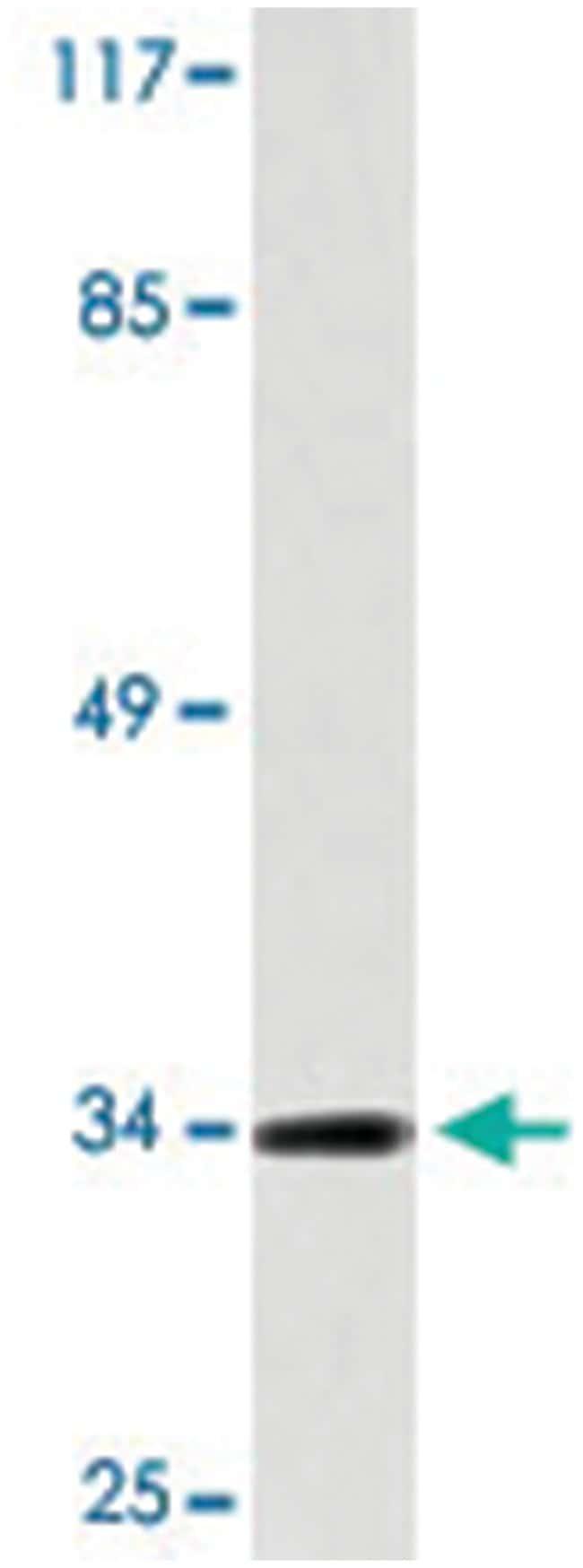 EPCAM Rabbit anti-Human, Polyclonal Antibody, Abnova 100µL; Unlabeled:Life