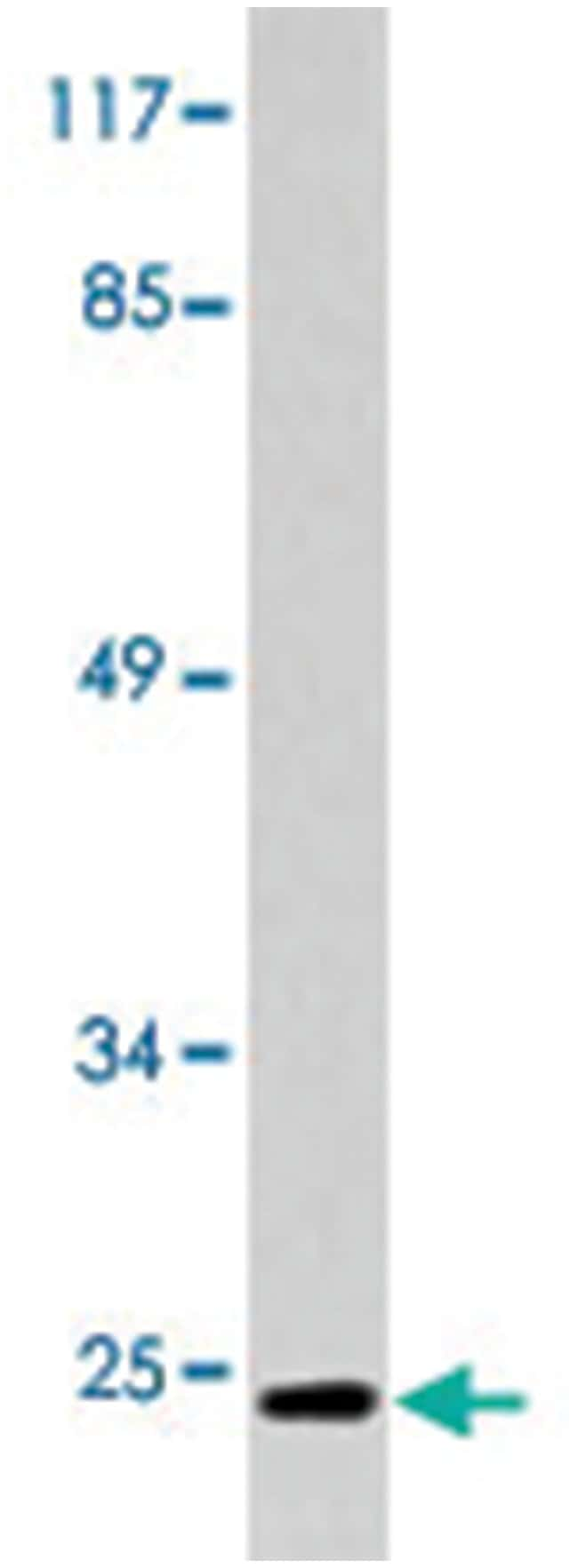 CD247 Rabbit anti-Human, Polyclonal Antibody, Abnova 100µL; Unlabeled:Life