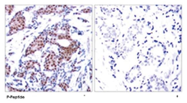 ELK1 (phospho S383), Rabbit anti-Human, Mouse, Rat, Polyclonal Antibody,