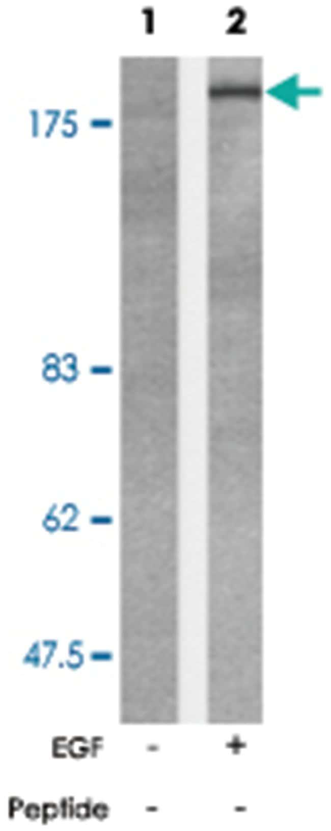 BCR (phospho Y177), Rabbit anti-Human, Mouse, Polyclonal Antibody, Abnova