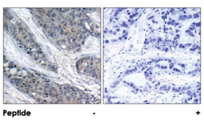 IRS1 (phospho S307), Rabbit anti-Human, Mouse, Rat, Polyclonal Antibody,
