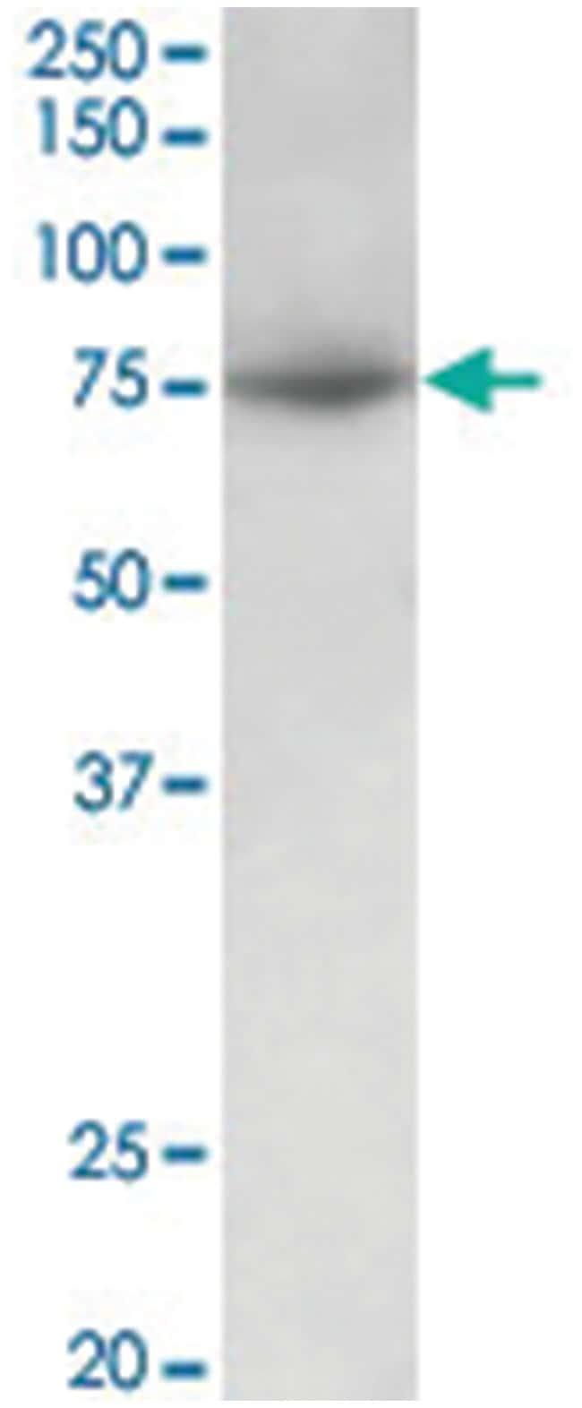 PRMT7, Goat, Polyclonal Antibody, Abnova 100µg; Unlabeled:Life Sciences
