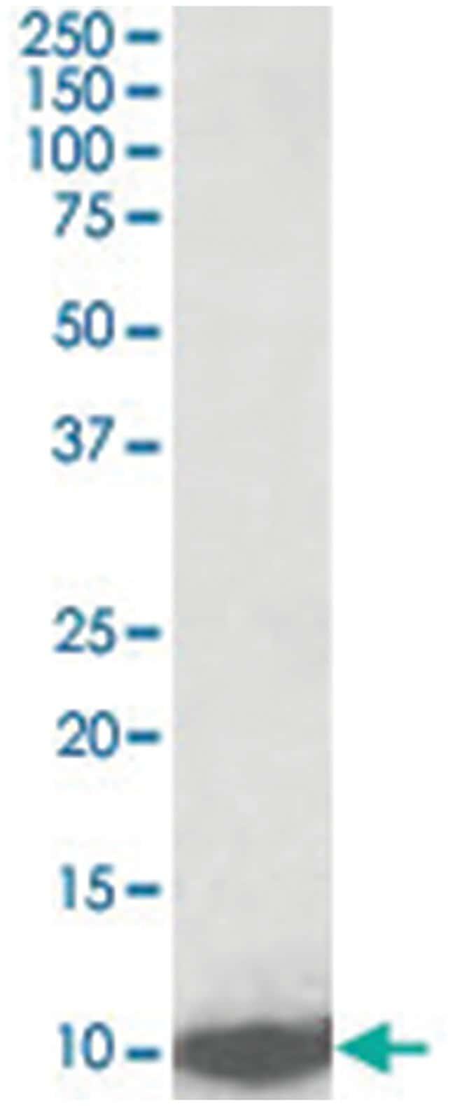LSM2, Goat, Polyclonal Antibody, Abnova 100µg; Unlabeled:Life Sciences