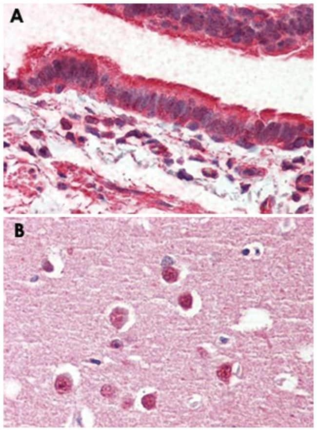 GPR98 Rabbit anti-Human, Polyclonal Antibody, Abnova 50µg; Unlabeled:Life