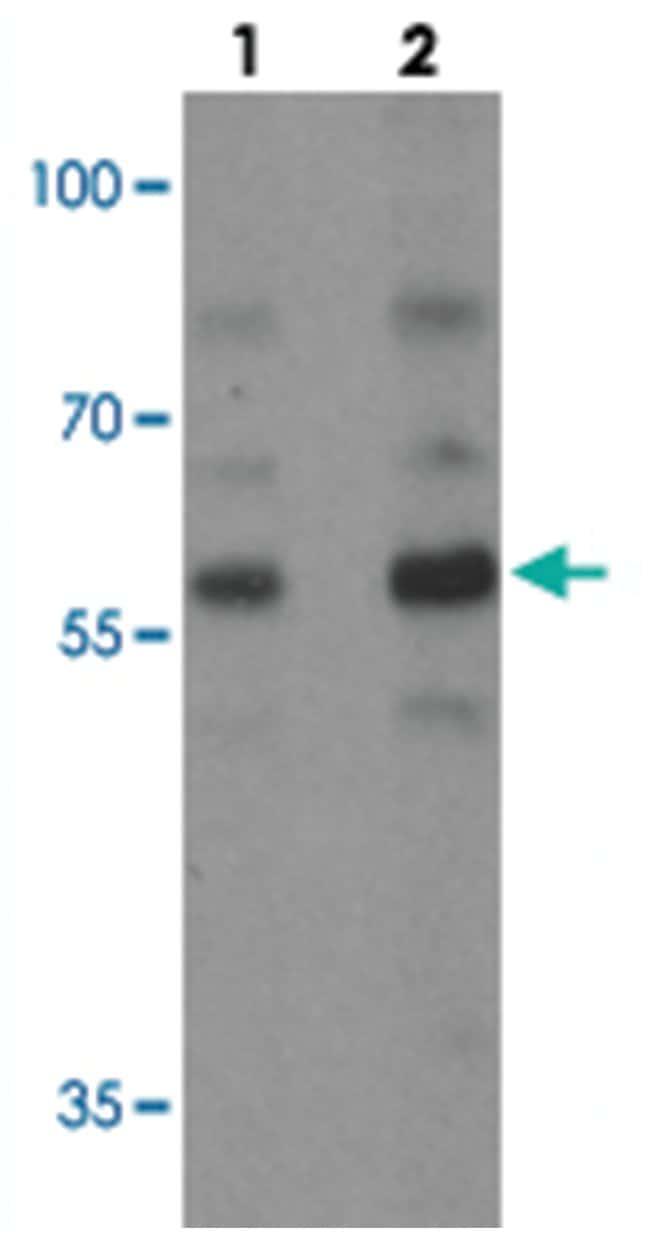 PLAGL2, Rabbit, Polyclonal Antibody, Abnova 100µg; Unlabeled:Life