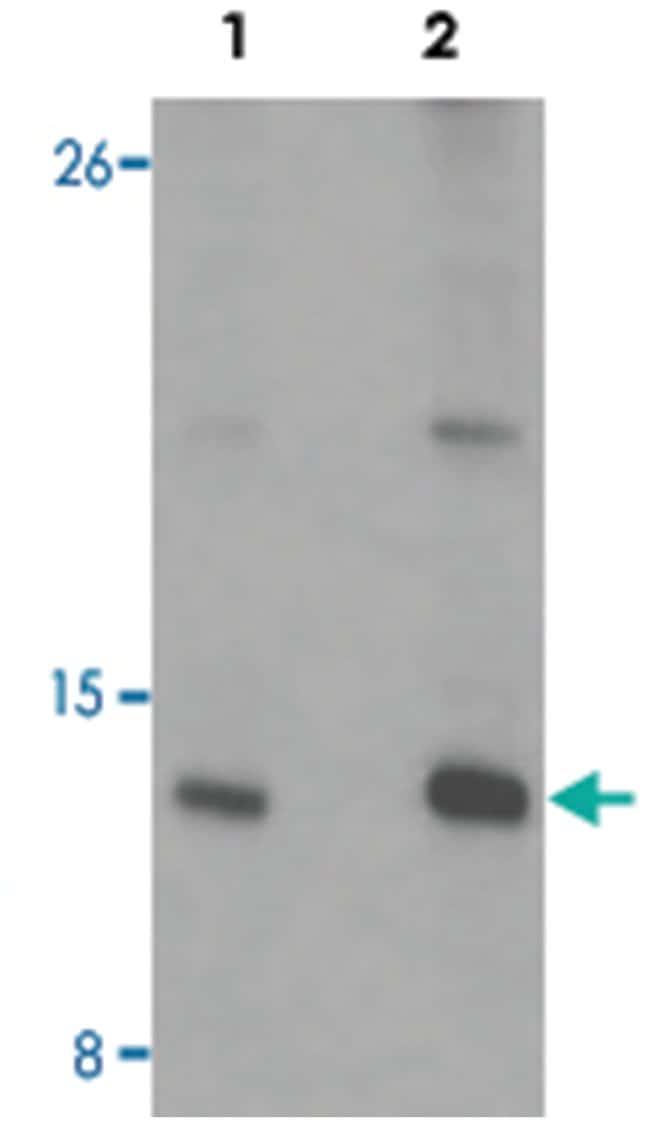 CENPW, Rabbit, Polyclonal Antibody, Abnova 100µg; Unlabeled:Life Sciences