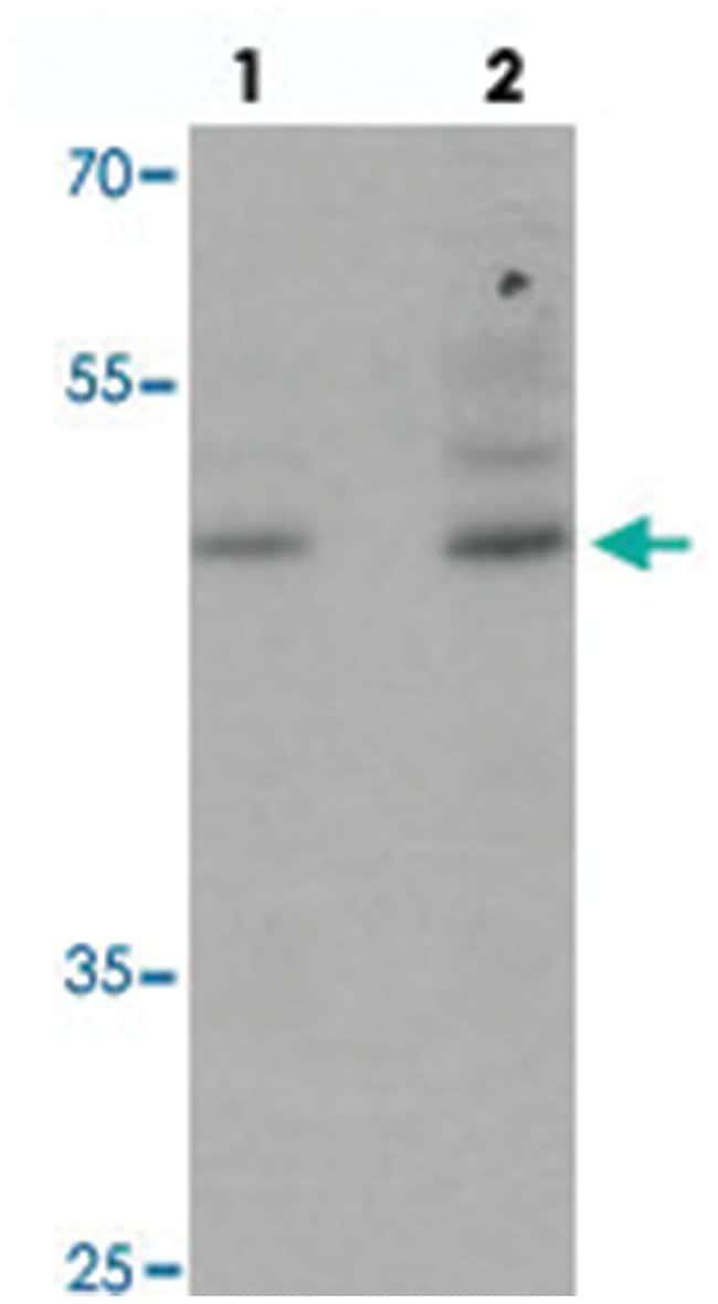 POU3F2, Rabbit, Polyclonal Antibody, Abnova 100µg; Unlabeled:Life