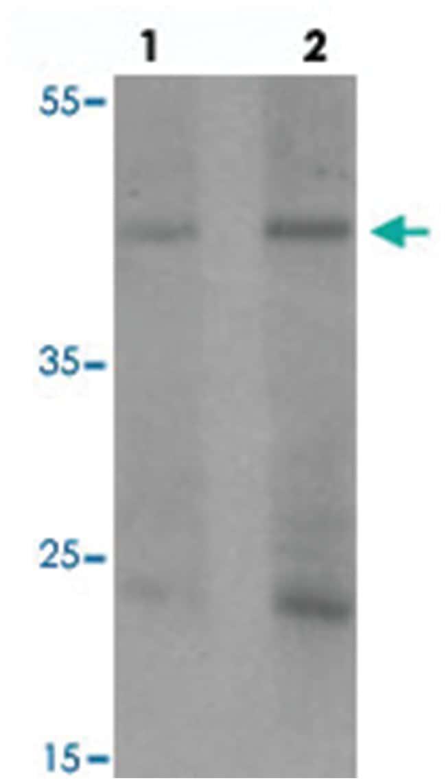 PELI1, Rabbit, Polyclonal Antibody, Abnova 100µg; Unlabeled:Life Sciences
