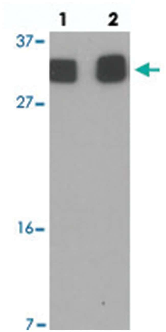 RILPL2 Rabbit anti-Human, Polyclonal Antibody, Abnova 100µg; Unlabeled:Life