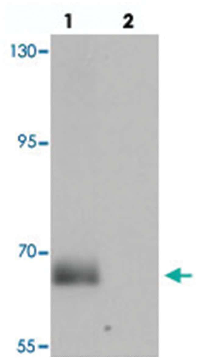 SPATA18, Chicken, Polyclonal Antibody, Abnova 100µg; Unlabeled:Life