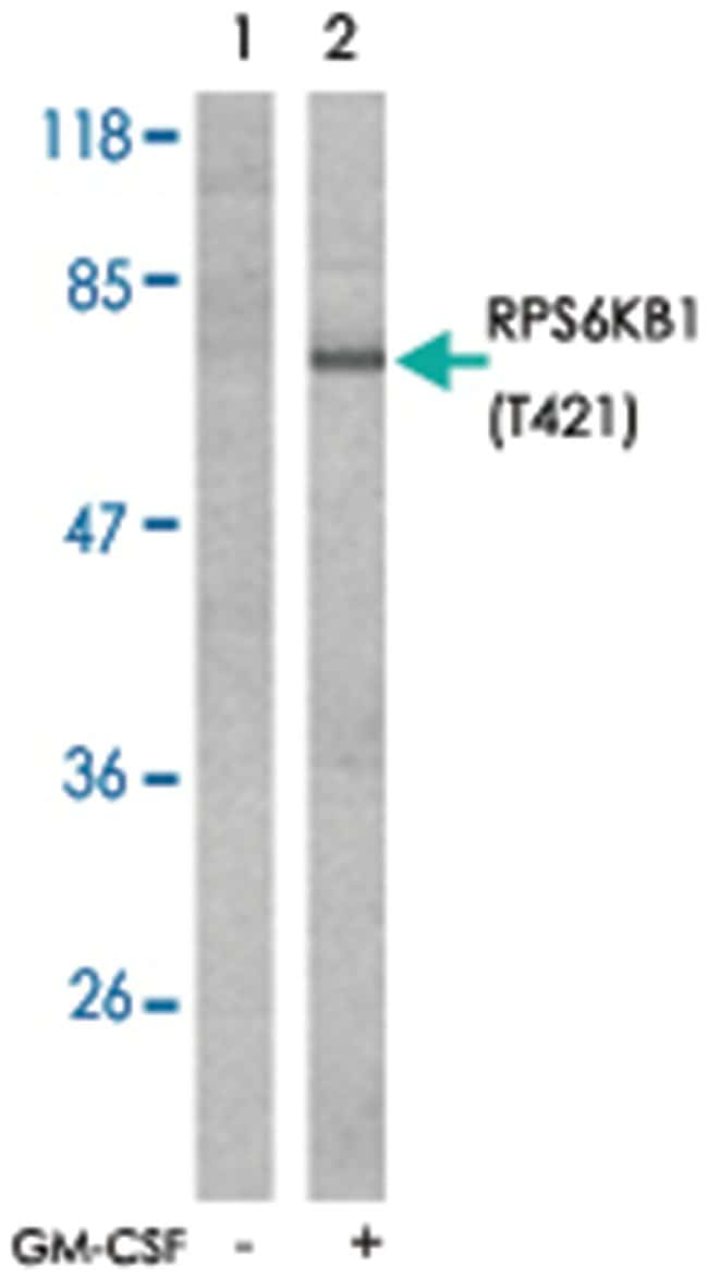 RPS6KB1 (phospho T421), Rabbit anti-Human, Mouse, Rat, Polyclonal Antibody,