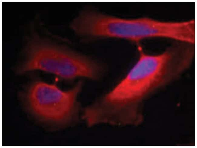 KRT8 (phospho S74), Rabbit anti-Human, Polyclonal Antibody, Abnova 100µg;