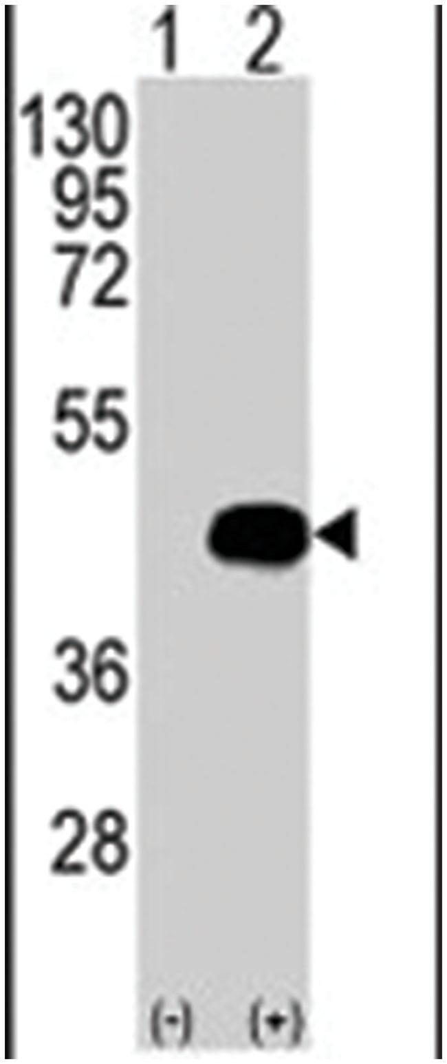 BCKDK Rabbit anti-Human, Polyclonal Antibody, Abnova 400µL; Unlabeled:Life