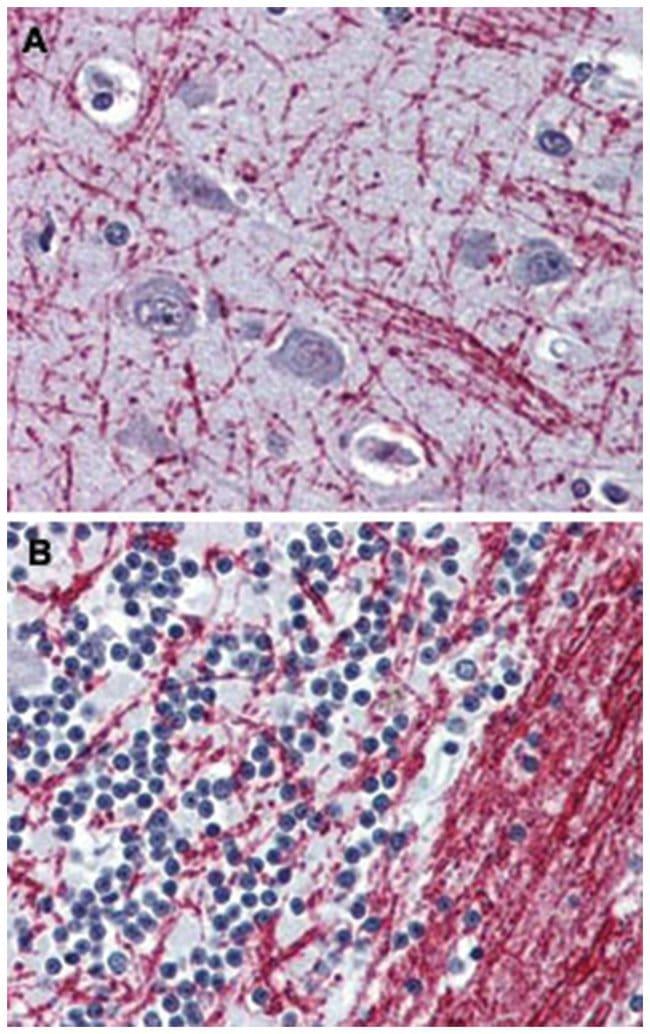 OPRM1 Rabbit anti-Human, Polyclonal Antibody, Abnova 50µg; Unlabeled:Life