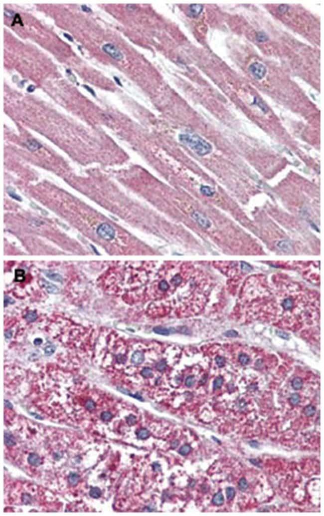 SSTR5 Rabbit anti-Human, Polyclonal Antibody, Abnova 50µg; Unlabeled:Life