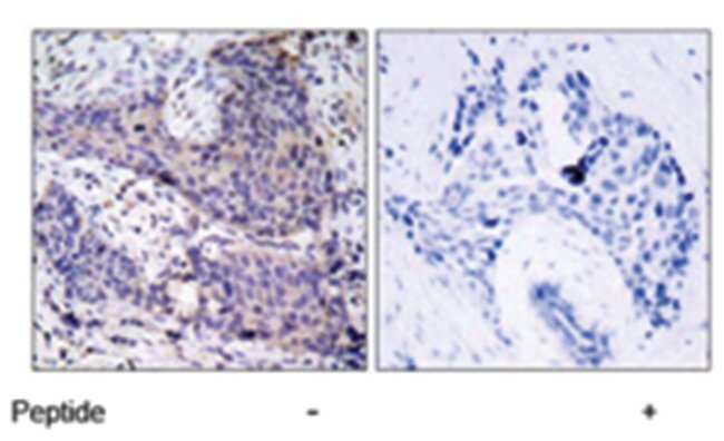 BAD Rabbit anti-Human, Mouse, Rat, Polyclonal Antibody, Abnova 100µg;