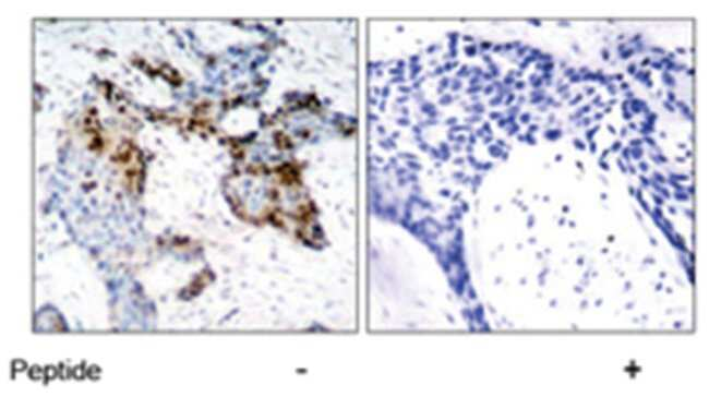 ESR1 Rabbit anti-Human, Mouse, Polyclonal Antibody, Abnova 100μg; Unlabeled:Antibodies