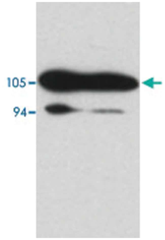 AR Rabbit anti-Human, Polyclonal Antibody, Abnova 100µg; Unlabeled:Life