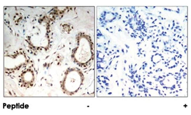 HSF1 Rabbit anti-Human, Polyclonal Antibody, Abnova 100µg; Unlabeled:Life