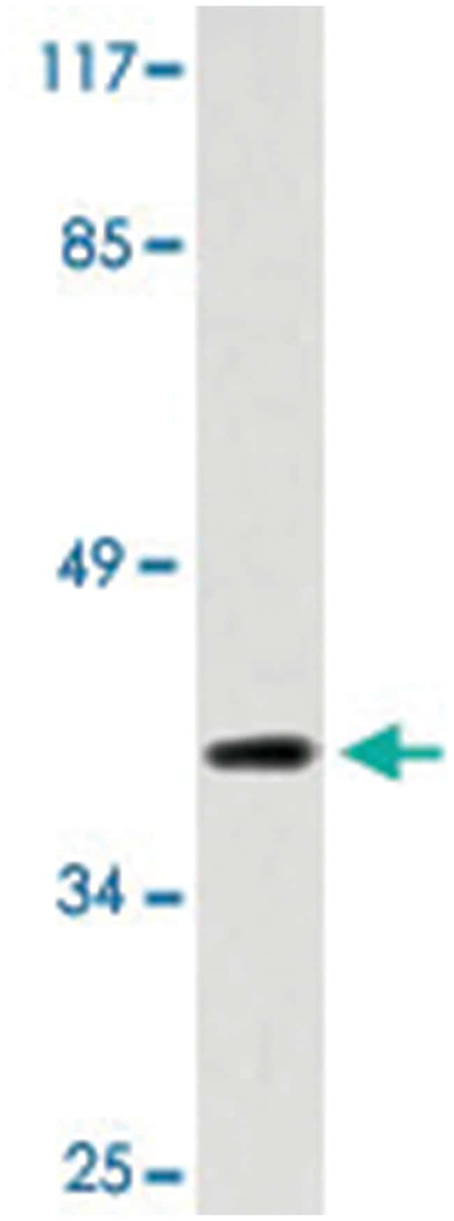 DOK6, Rabbit, Polyclonal Antibody, Abnova 100µL; Unlabeled:Life Sciences