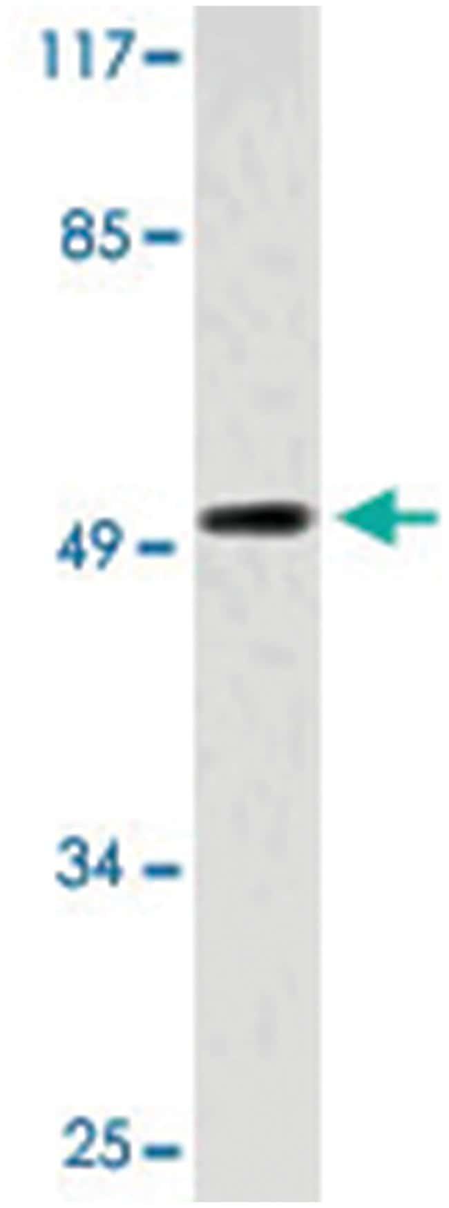 ZIC1/ZIC2/ZIC3, Rabbit, Polyclonal Antibody, Abnova 100µL; Unlabeled:Life