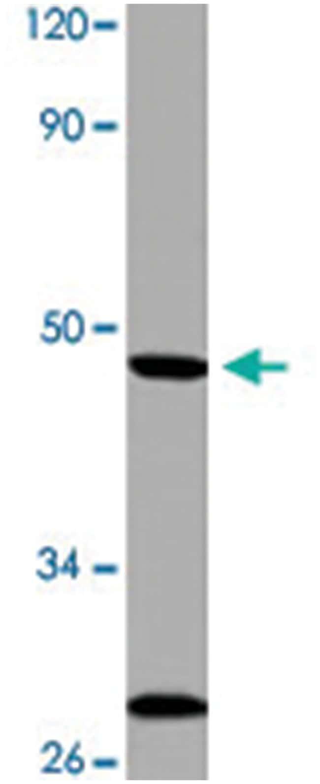 OPN3 Rabbit anti-Human, Mouse, Polyclonal Antibody, Abnova 100µL;