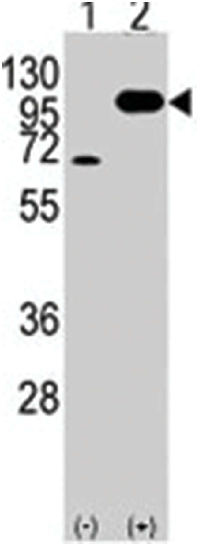APP Rabbit anti-Human, Polyclonal Antibody, Abnova 400µL; Unlabeled