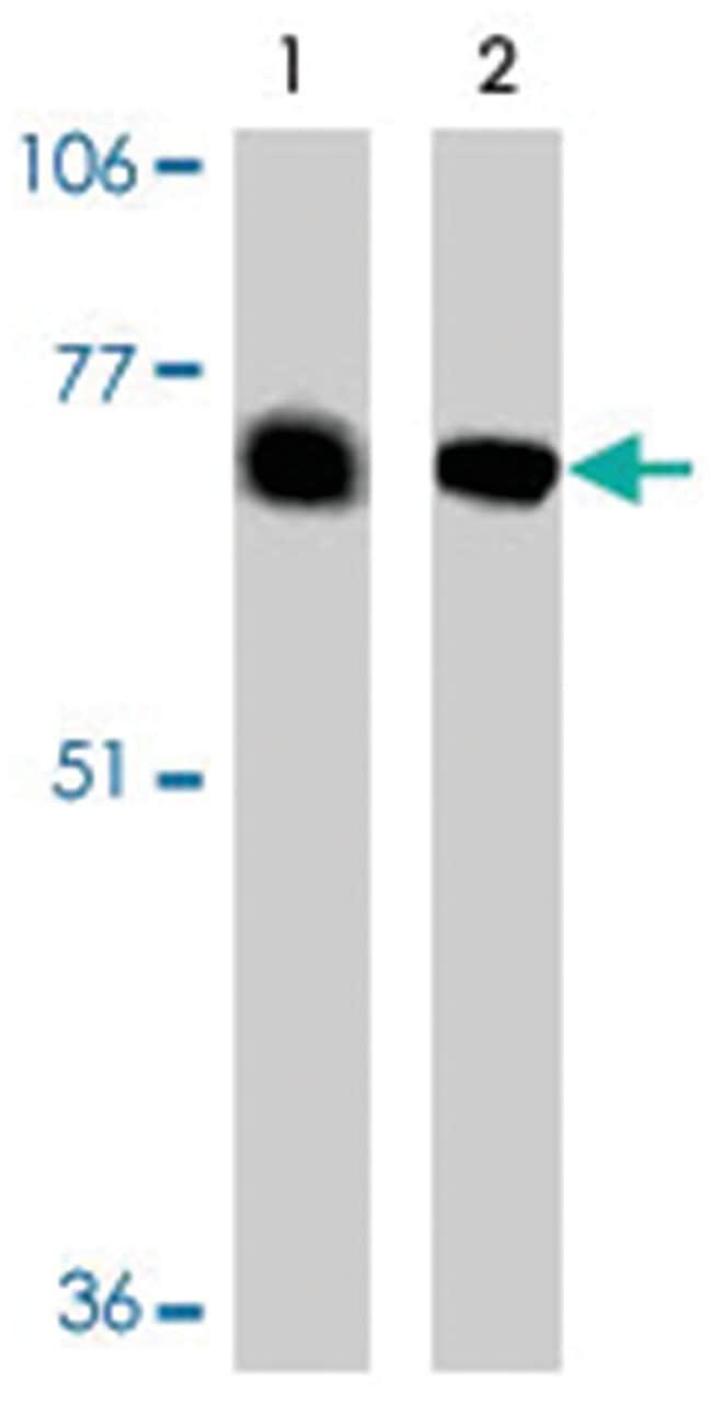 BACE2 Ab-1, Rabbit, Polyclonal Antibody, Abnova 100µg; Unlabeled