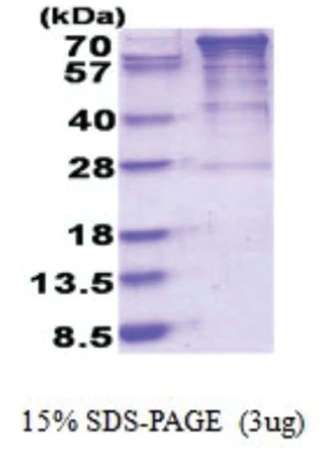 Novus Biologicals EEF2K Human Recombinant Protein, TMW: 84.6kDa 0.02mg:Life