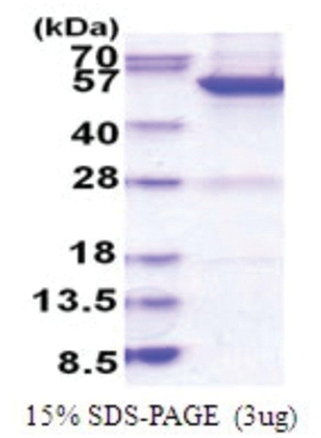 Novus Biologicals MINA Human Recombinant Protein 0.02mg:Life Sciences
