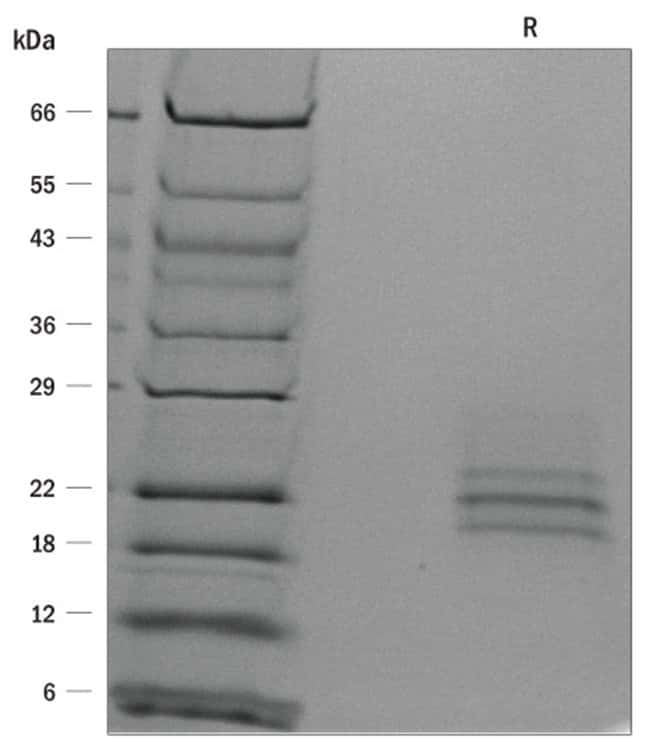 R ProDots Human Flt-3 Ligand Recombinant Protein:Life Sciences:Protein
