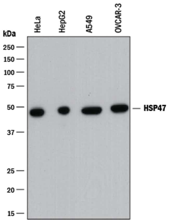 Hsp47 Mouse anti-Human, Clone: 950811, R::