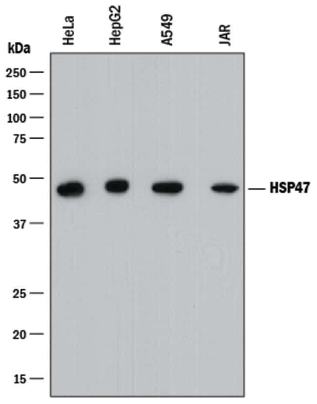 Hsp47 Mouse anti-Human, Clone: 950828, R::
