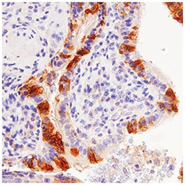 IgG Donkey anti-Goat, VisUCyte HRP Polymer, Polyclonal, R:Life Sciences:Antibodies