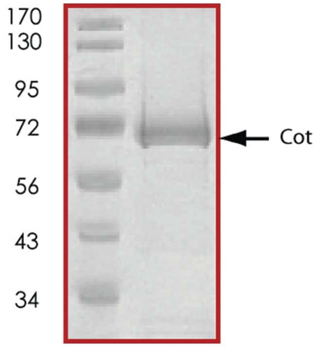 R Human Active MAP3K8/Tpl2/COT, Carrier-Free Recombinant Protein 10ug,