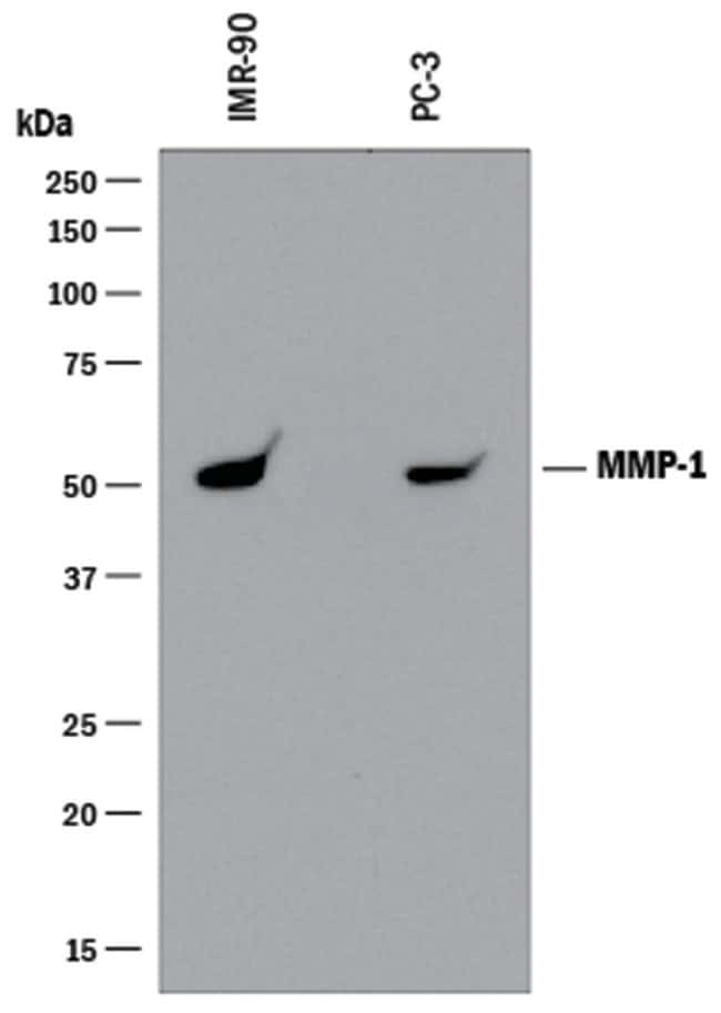 MMP-1 Mouse anti-Human, Clone: 36665R, R::