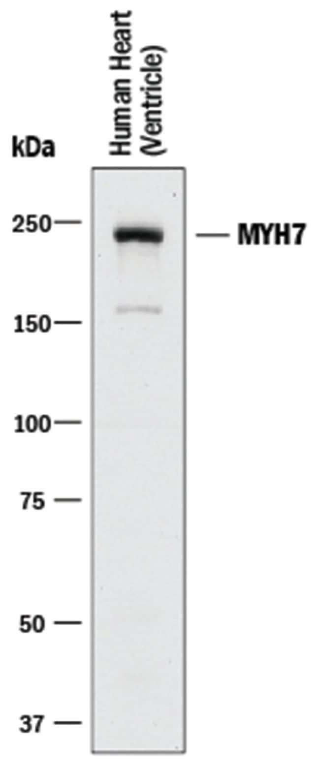 MYH7 Rabbit anti-Human, Clone: 2021A, R::