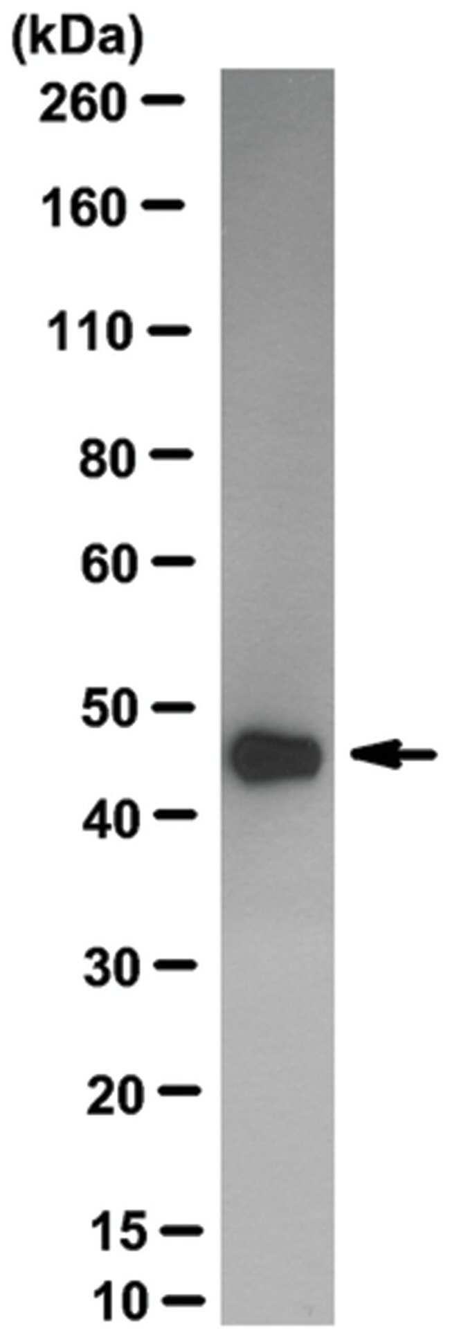 MilliporeSigma ERK1/MAPK3, Rabbit, Unlabeled, Clone: UP-158-22-3-10, 100µL;