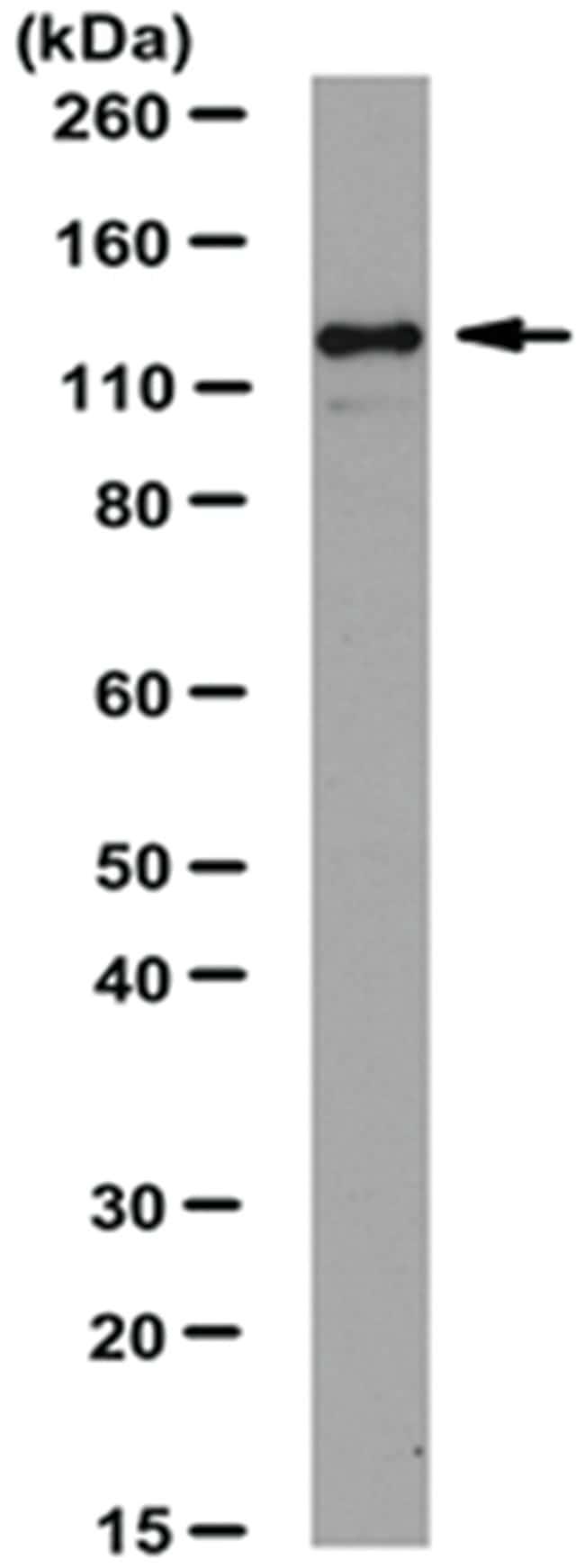 MilliporeSigma anti-JAK2, Polyclonal 100µg, Unlabeled:Life Sciences