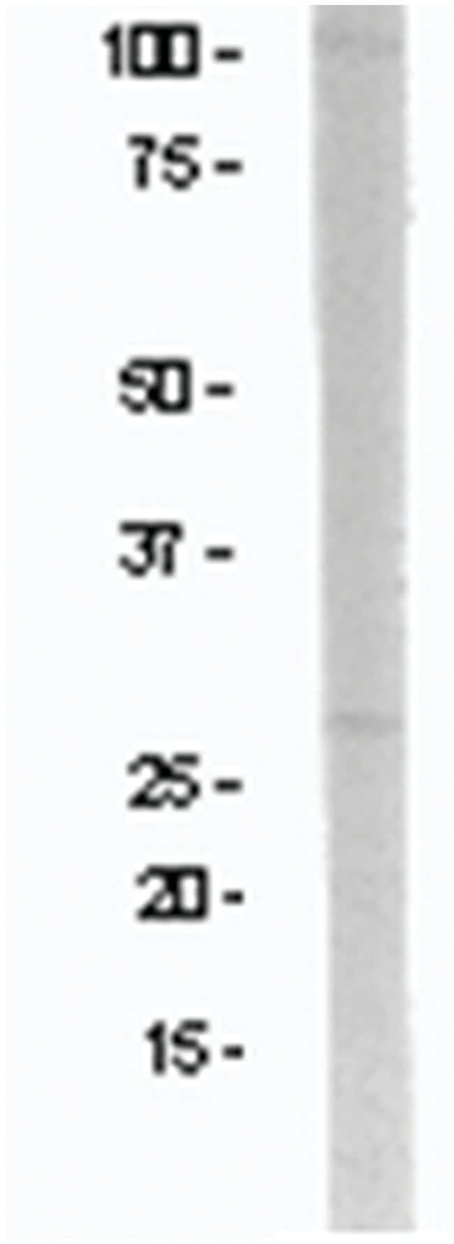 NR2B Rabbit anti-Mouse, Polyclonal, MilliporeSigma 250µg; Unlabeled:Life
