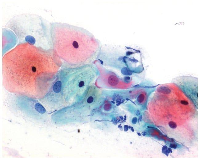 MilliporeSigma Papanicolaou's Solution 3b Polychromatic:Chemicals:Biochemicals