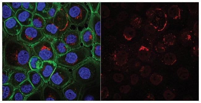 MilliporeSigmaMouse anti-Cytokeratin 5,6, Clone: D5/16B4, Alexa Fluor 555,